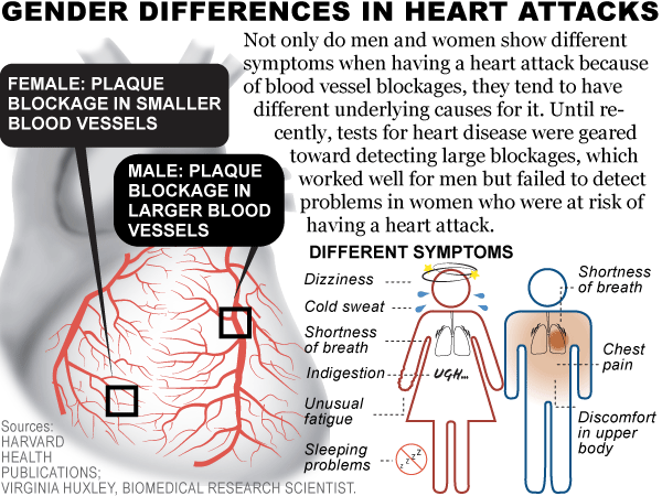Heart Attackmi (myocardial Infarction)  Practical. Issue Signs Of Stroke. Sea Signs. Cheo Signs. Science Advances Signs. Non Small Cell Signs. Westermark Sign Signs Of Stroke. Functional Signs. November 30th Signs Of Stroke