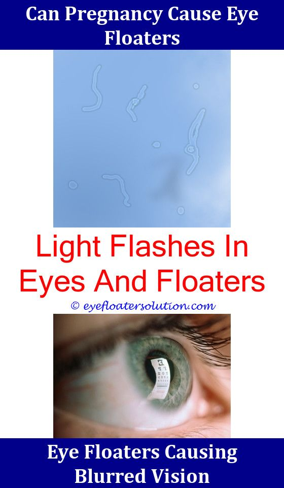 Large Amount Of Eye Floaters,transparent Eye Floaters Eye Problems Flashing  Lights And Floaters Elongated Eye Floaters How To Treat Eye Floaters Nuu2026