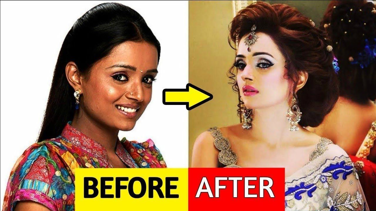 see these tv actors have also done plastic surgery    इन