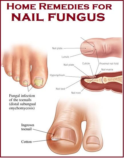 20 DIY Home Remedies for Nail Fungus | Nail fungus remedy, Toenail ...