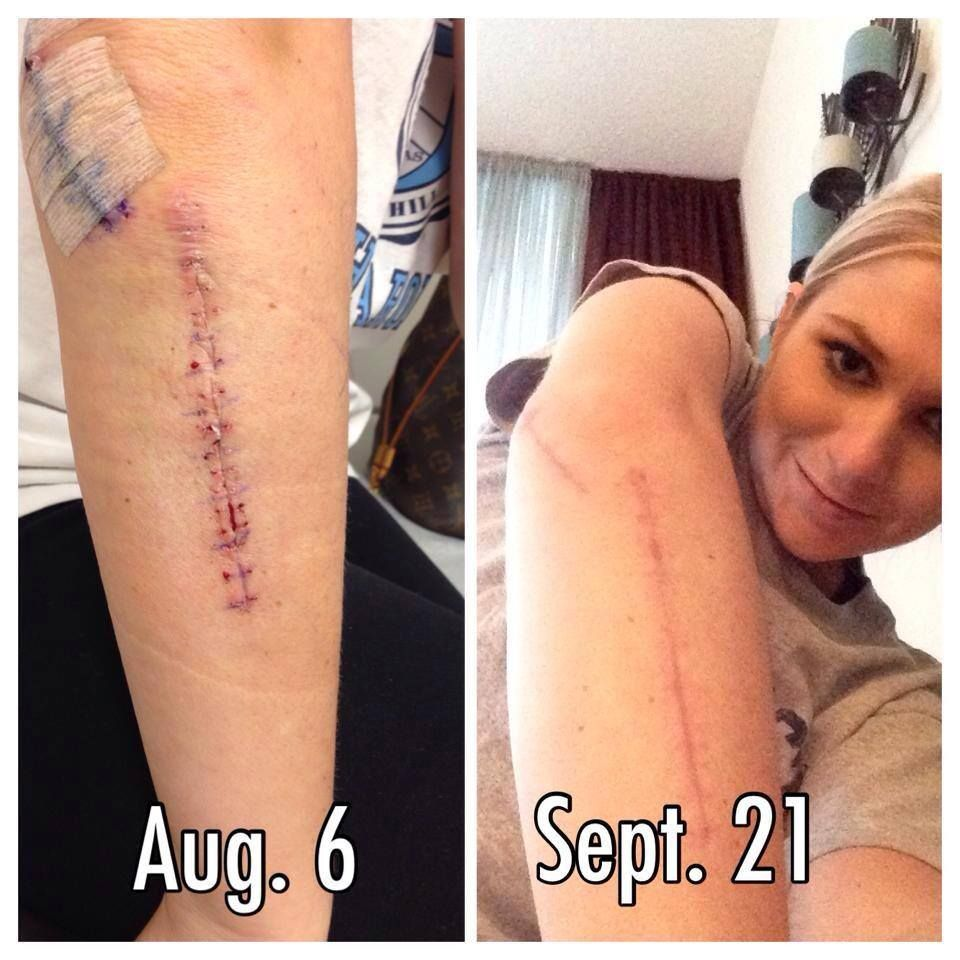 These Are Amazing Products Just Look At The Results That Can