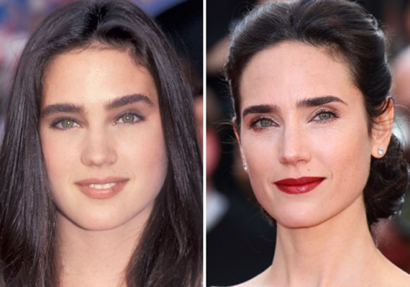 Nose Job Before And After 101 Celebrities Before And After Plastic Surgery How Much Does A Nose Job Cost Nose Job Recov Celebrity Eyebrows Beauty Beauty Hacks