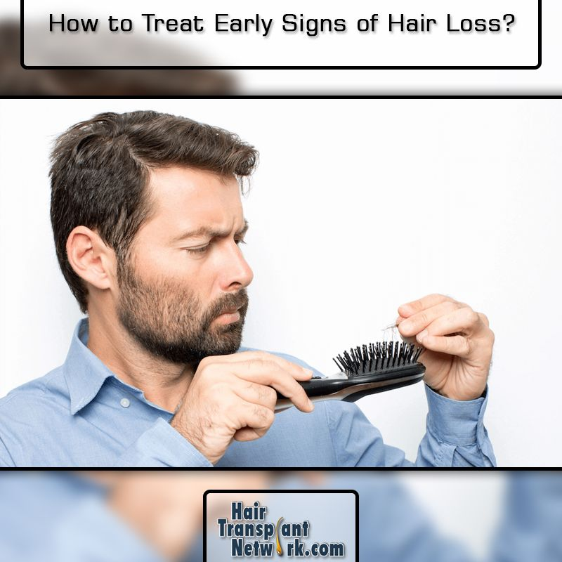 35++ How to deal with male pattern baldness inspirations