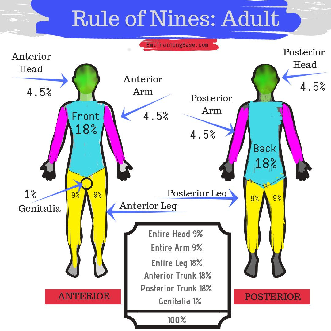 Rule Of Nines For Ems