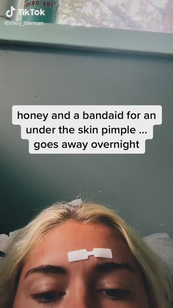 Pin By Just Another Tiktok User On Tiktoks Video Pimples Skin Band Aid