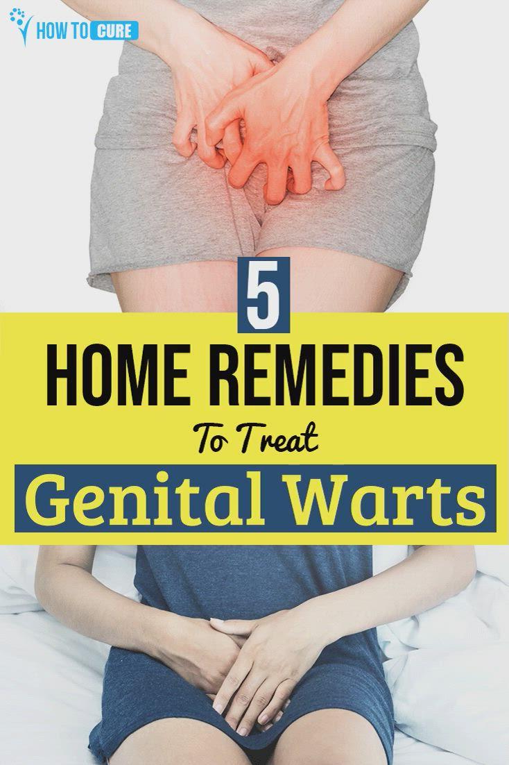 Women 😍 genital warts in Genital warts